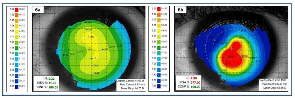 Topografia córnea normal e ceratocone