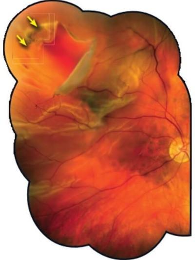 Descolamento de retina regmatogênico na Miopia Patológica.