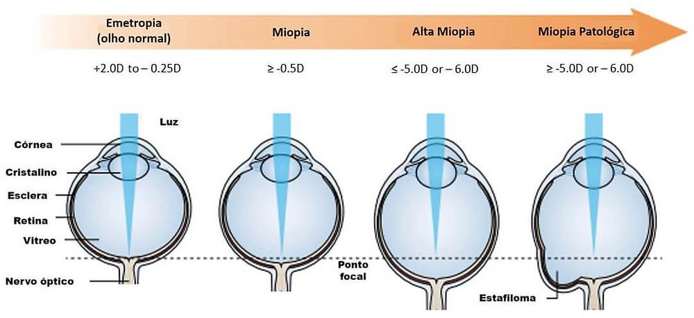Alterações no formato ocular tem relação com o grau da miopia