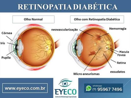 RETINOPATIA DIABÉTICA é uma das principais complicações da diabetes