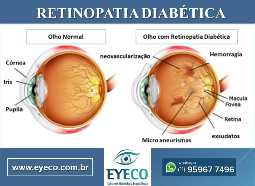 Olho normal e retinopatia diabetica