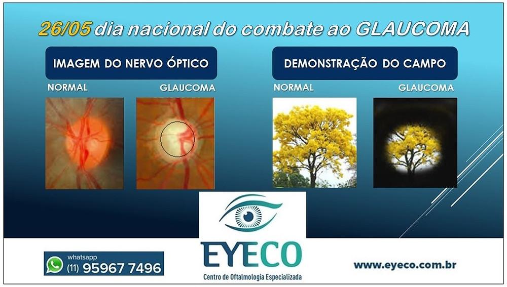 Nervo óptico normal e glaucoma avançado