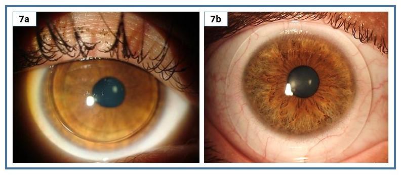 Imagem de lente de contato rígida e escleral