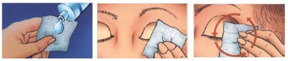 Tratamento da blefarite