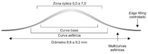 Lentes Best Fit K para ceratocone proporciona um padrão excelente de adaptação