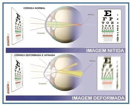 Comparação entre imagem nítida e desfocada por ceratocone avançado
