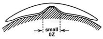 Lente de Contato Rose K2 para Ceratocone