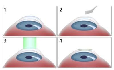 Etapas da cirurgia Refrativa PRK
