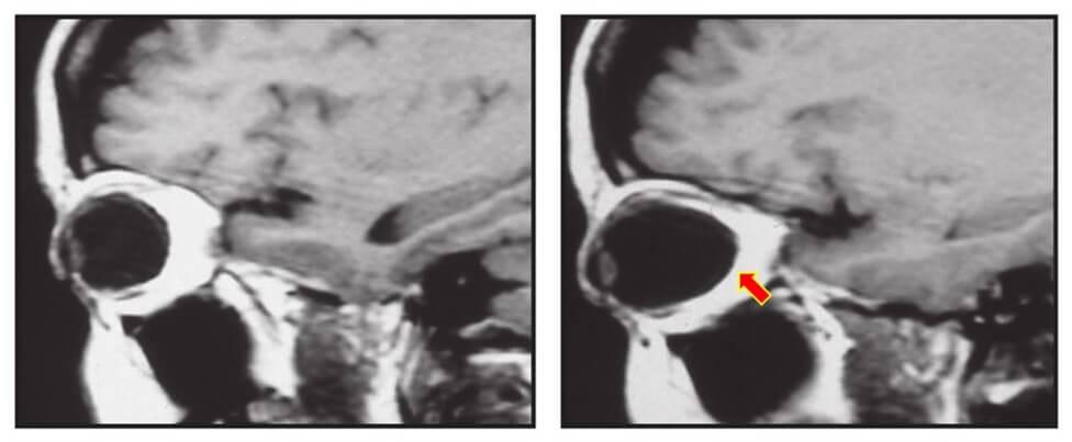 Diferencias entre olho normal o miopia patológica evidenciado pela Ressonância magnética