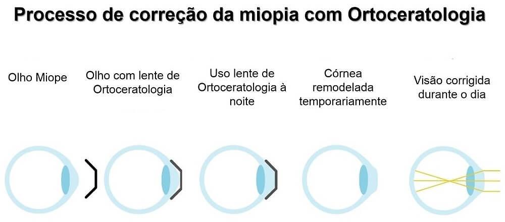 Processo de correção da miopia com lentes de Ortoceratologia