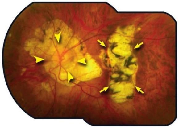 Atrofia e cicatriz de retina na miopia patológica.