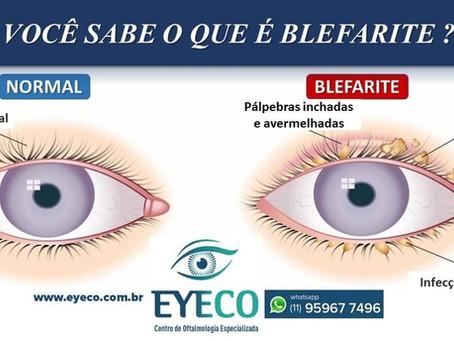 BLEFARITE: Sintomas e Tratamento