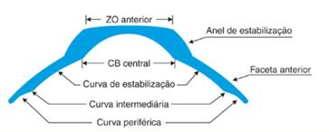 Lente de Contato Especial Sistema SOPER para Ceratocone avançado.