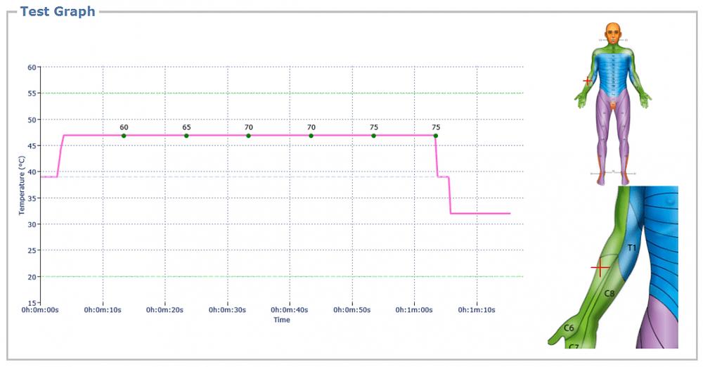 Tonic TS protocol - graph