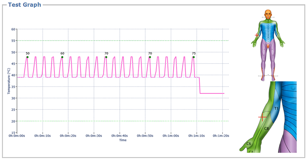 Phasic TS protocol - graph