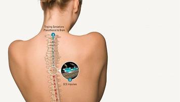האם קיימת השפעה של תדר הגירוי על שיכוך הכאב? PROCO Study