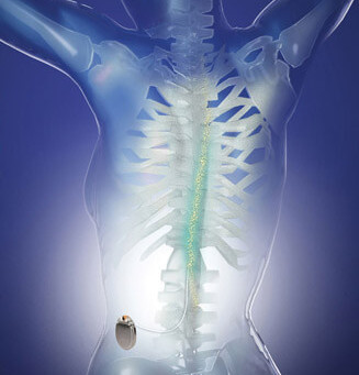 Dynamic Pain Phenotypes are associated with Spinal Cord Stimulation-Induced Reduction in Pain
