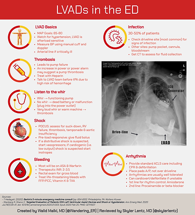 emdocs_LVADs-in-ED-768x845.png