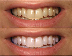 before-and-after-whiteing2.jpg
