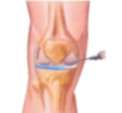 artrocentese.jpg