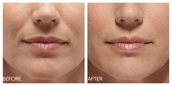 Visage Medispa Belotero Balance, Facial Filler Setuaket,