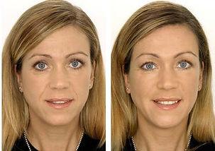 Visage Medispa Before and After Setauket NY