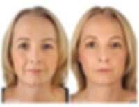 Visage Perlane Before and After