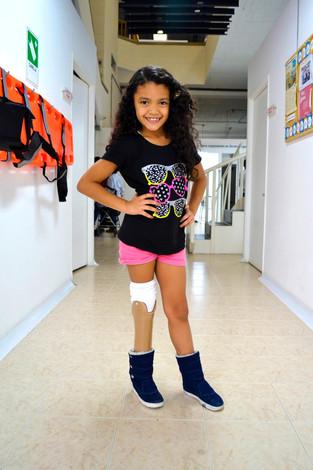 Niña venezolana obtiene prótesis gratuita en Colombia