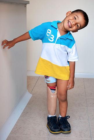 Niño con prótesis de pierna