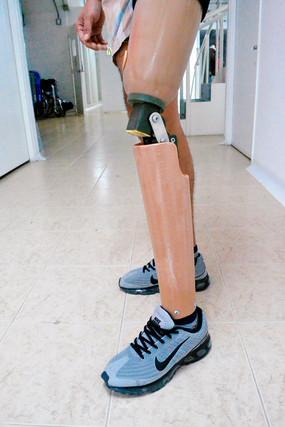 prótesis modular