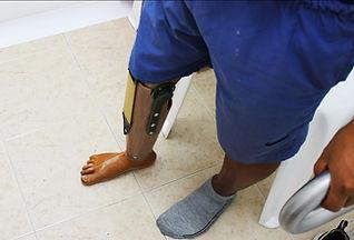 adaptación de prótesis