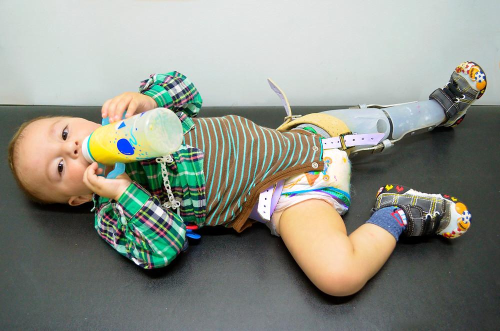 La prótesis le dará a Jerónimo la oportunidad de tener una vida sana y feliz