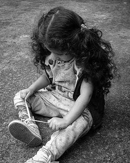 niña con prótesis artesanal