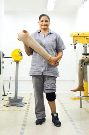 Perdió su pierna y hace prótesis para otros como ella