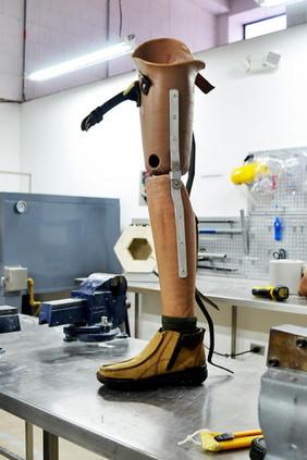prótesis sobre rodilla
