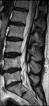 Advantage 3T MRI
