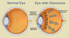 Glaucoma - the 'silent thief' of sight?