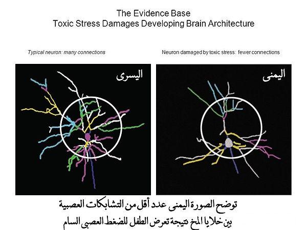 تشابكات عصبية.jpg
