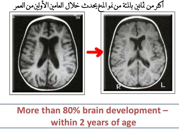 المخ.png