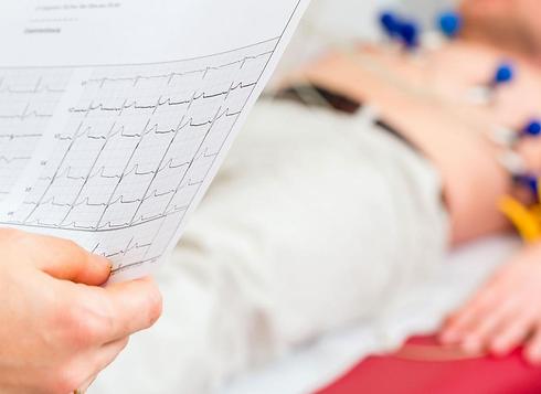 exame-coração-ecg-eletrocardiograma-drma