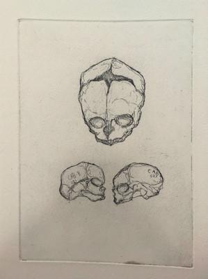 Etching of foetal skulls