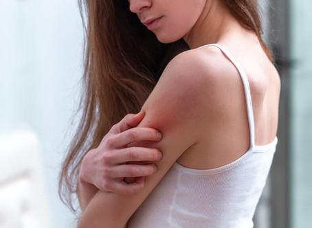 Nuovi strumenti nella cura della dermatite atopica