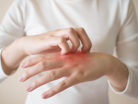 Cos'è la dermatite da contatto e come curarla