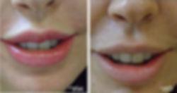 הדגשת שפתיים באיפור קבוע