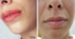 מיטל שמשי - הדגשת שפתיים