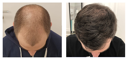 Hair transplantation before and after 2.png