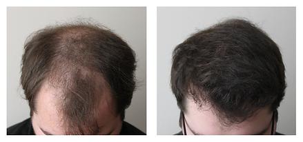 Hai transplantation before and after