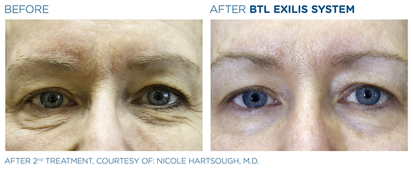 BTL_Exilis_system_PIC_Ba-card-female-eye