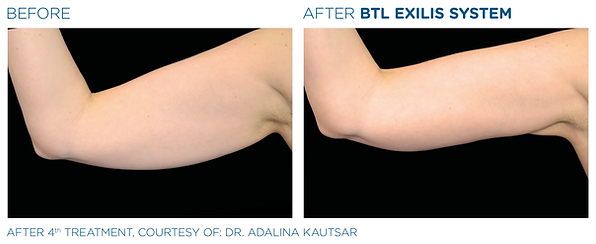 BTL_Exilis_system_PIC_Ba-card-female-arm