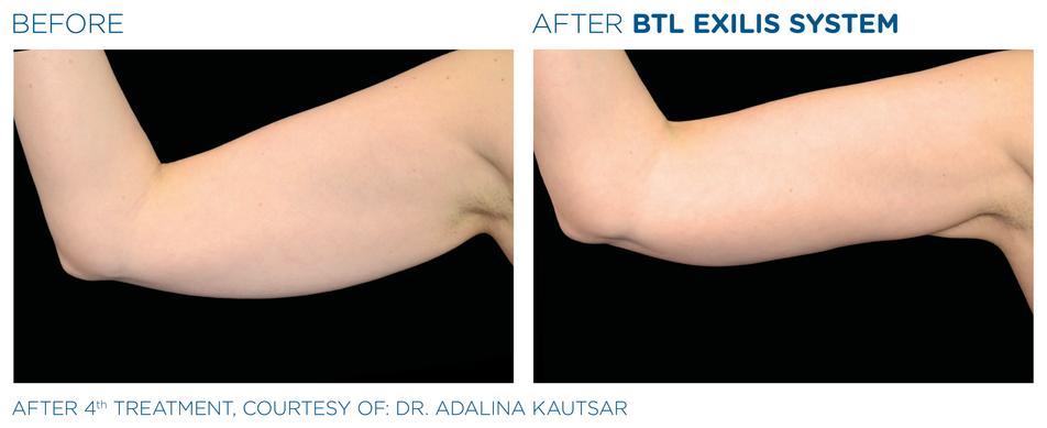 BTL_Exilis_system_PIC_Ba-card-female-arm